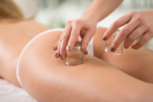 anti-cellulite-cupping-therapy-renu-madison