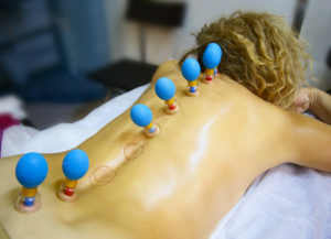 biomagnetic-cupping-therapy-renu-madison